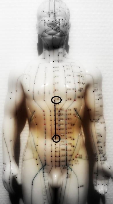 acupuncture-001